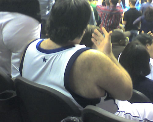 Hairy Jersey